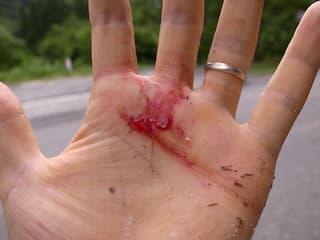怪我をした手