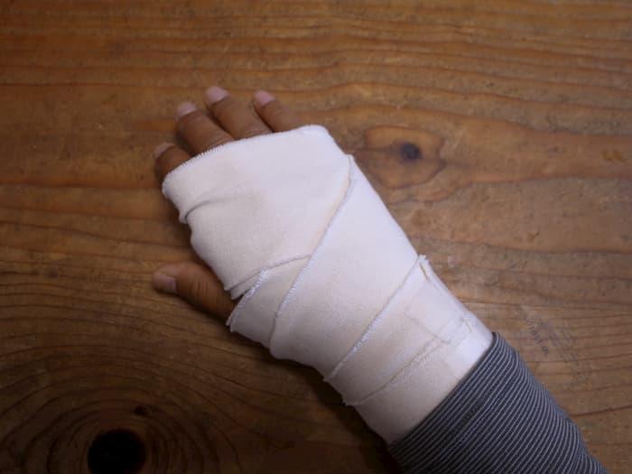 怪我をした右手