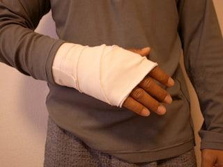 手術後の右手